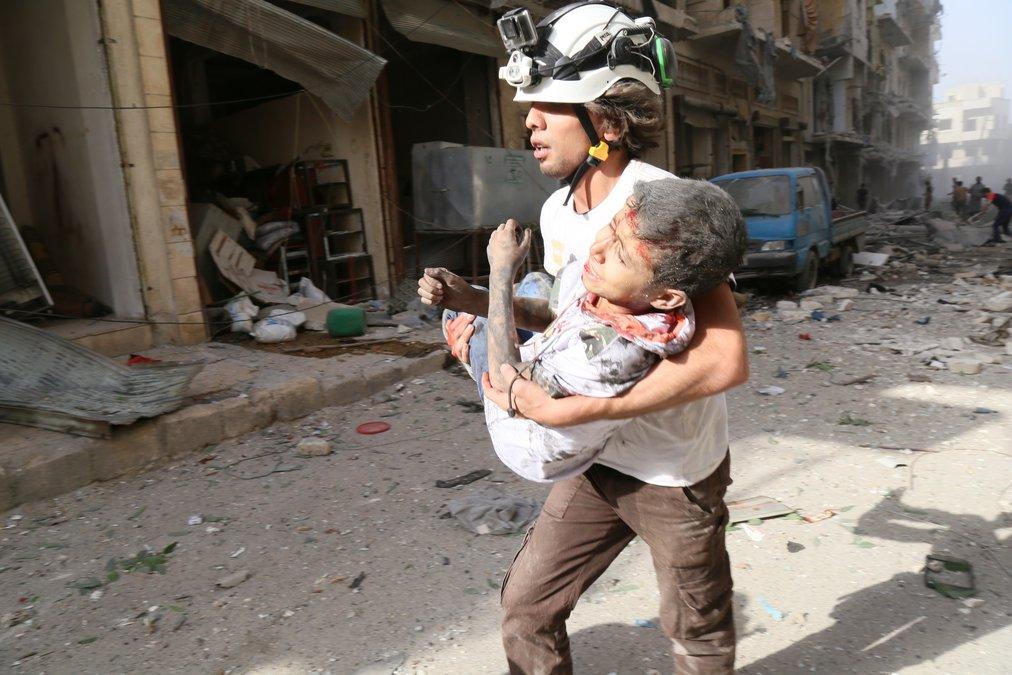 إخلاء طفل إصيب جراء قصف جوي على مدينة حلب