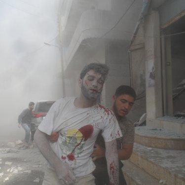 متطوع أصيب جراء قصف مزدوج في إدلب